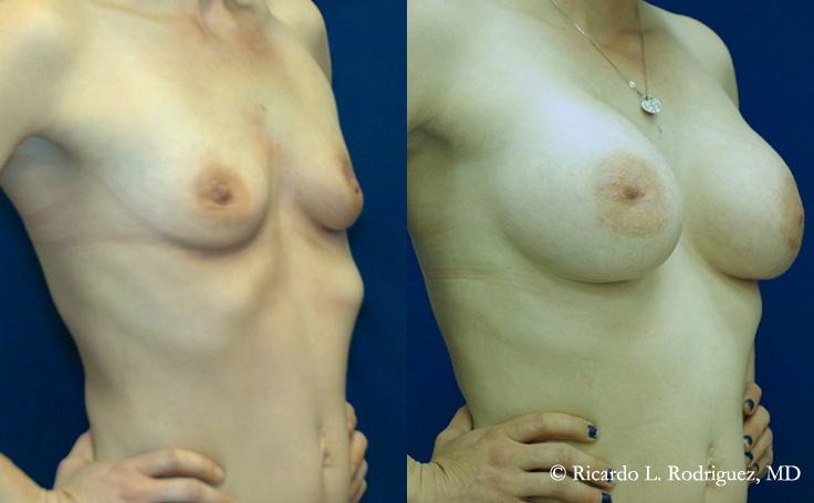 Before and After 375 cc High Profile Silicone Implants
