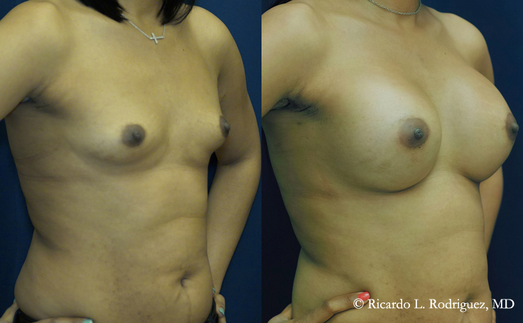 Before and After Breast Augmentation with 350 cc High Profile Silicone Implants