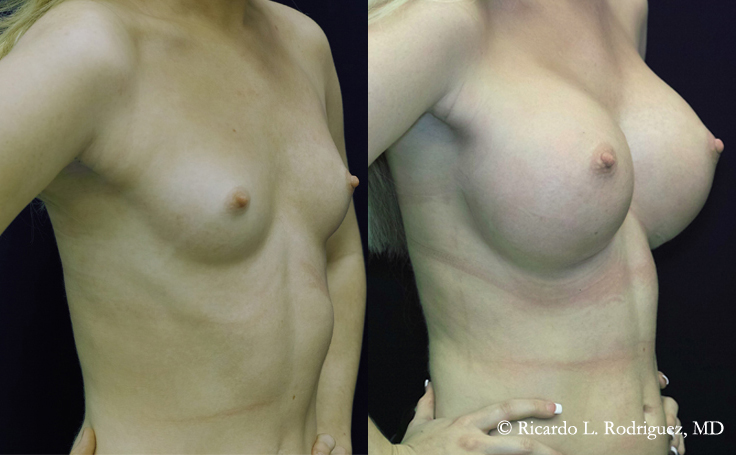 Before and After 500 cc High Profile Silicone Implants