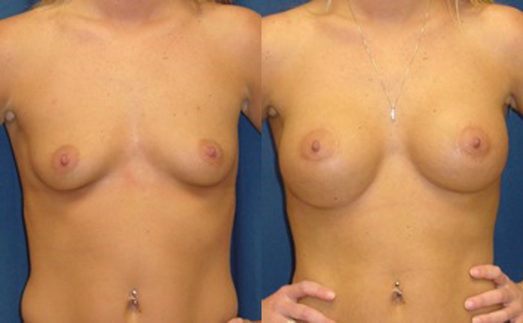 silicone breast implants before and after pictures