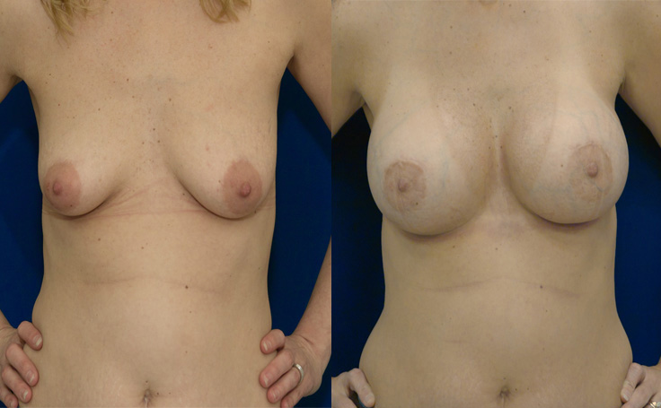 Breast Augmentation with High Profile Saline 480 cc (front view)
