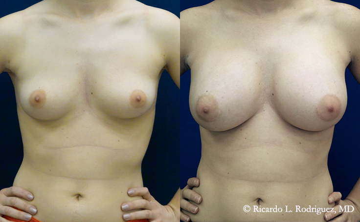 Before and After Breast Augmentation with 450 cc silicone implants inserted at the nipple line (infra-areolar)