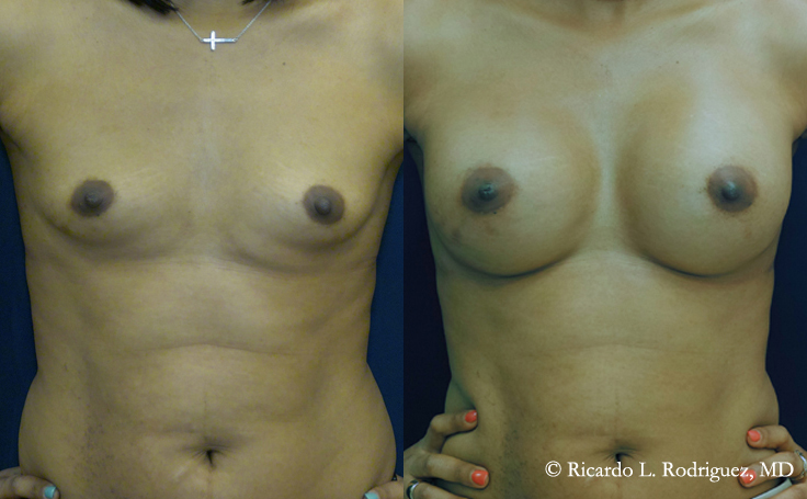 Before & After Breast Aug with 350 cc High Profile Silicone Implants