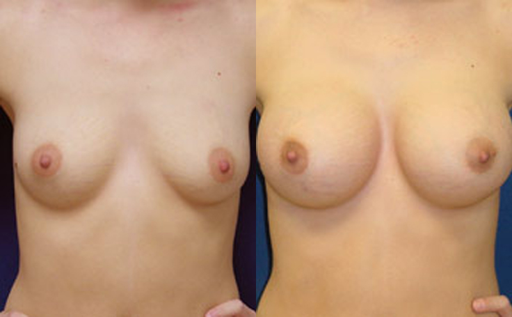 360cc Saline Implants (front view)