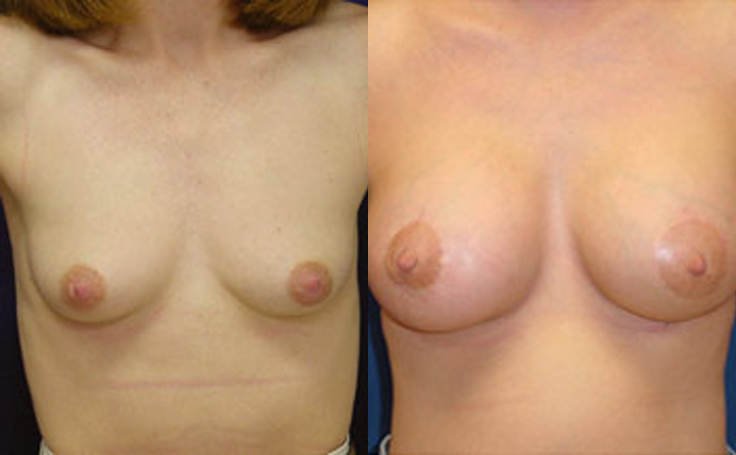 250cc Saline Implants (front view)