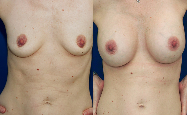 Breast Augmentation with  XXX (front view)