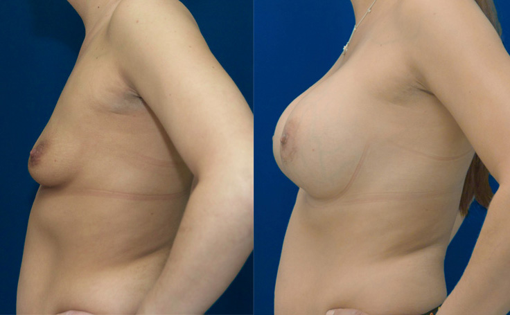 Breast Augmentation with 650 High Profile Breast Implants (side view)