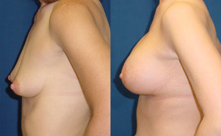 250cc Saline Implants (side view)
