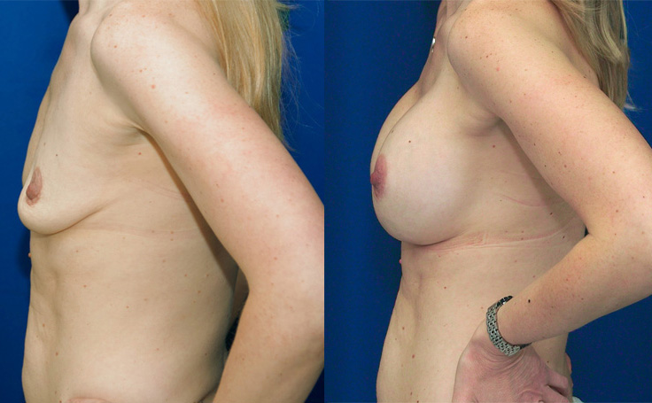 Breast Augmentation with  XXX (side view)