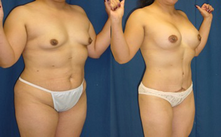 Breast Lift with crescent lift mastopexy (angle view)