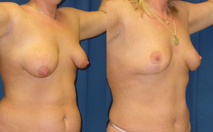 Breast Lift vertical scar technique (angle view)