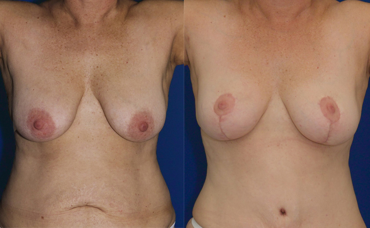 Breast Lift (front view)