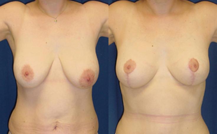 Breast Lift vertical single scar technique (front view)