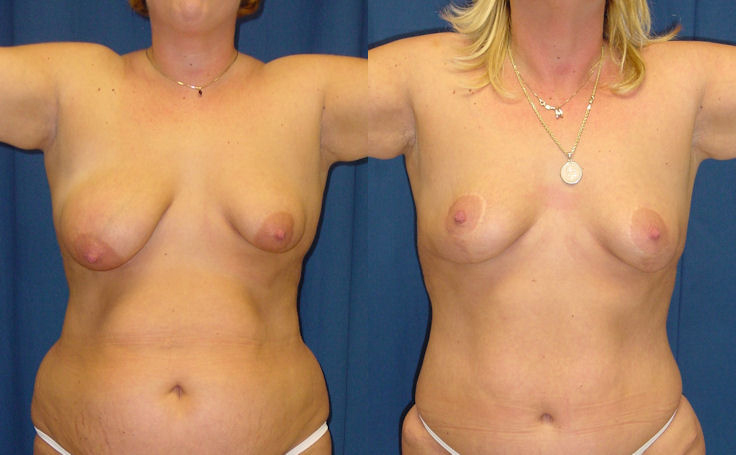 Breast Lift asymmentry correction vertical scar technique (front view)