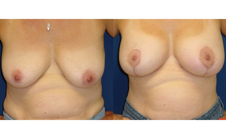 Breast Lift vertical scar technique (front view)