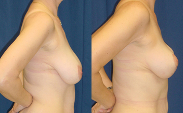 Breast Lift with single vertical scar (side view)