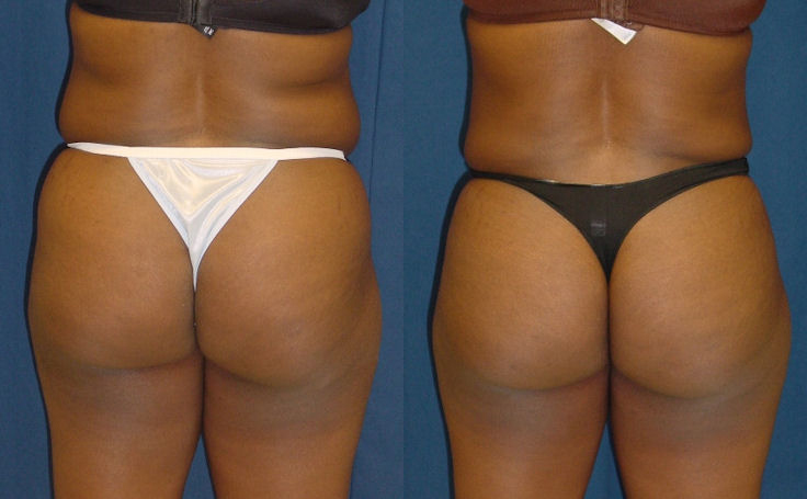 Bmore Butt Lift with Tummy Tuck (back view)