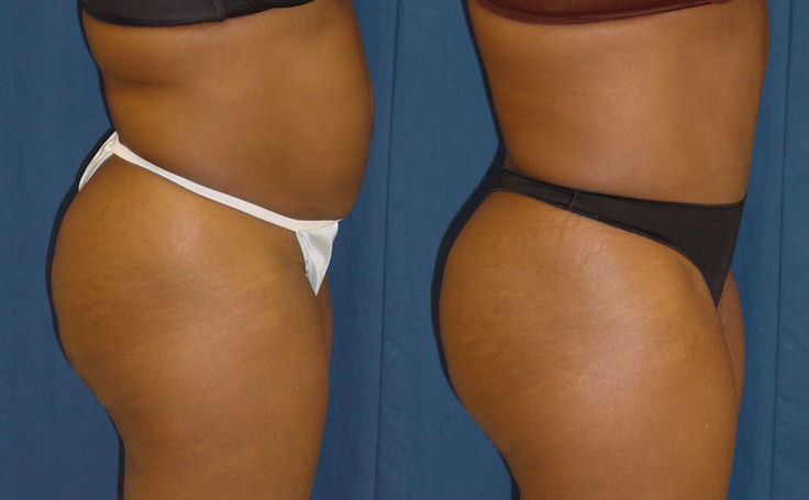 Bmore Butt Lift with Tummy Tuck (side view)