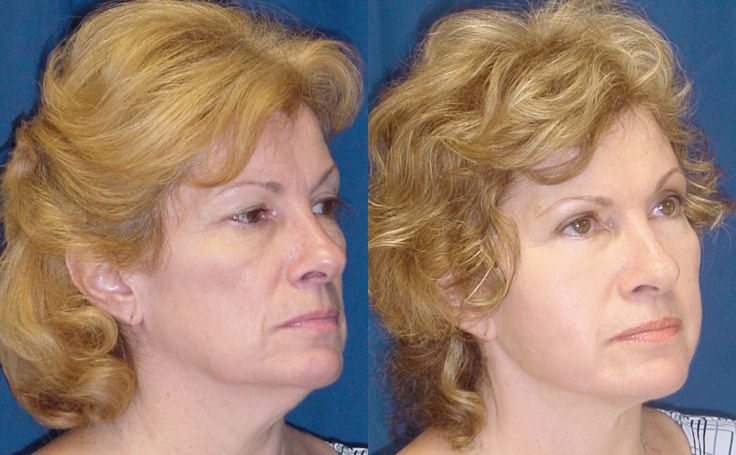 Full Facelift Before and After Alternate View