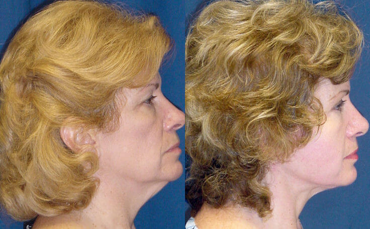 Total Facelift with Dr. Rodriguez in Baltimore