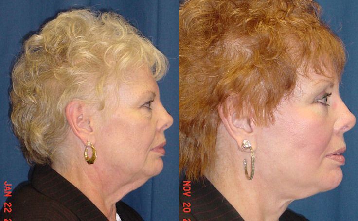 Before and after photo of an actual Facelift patient.