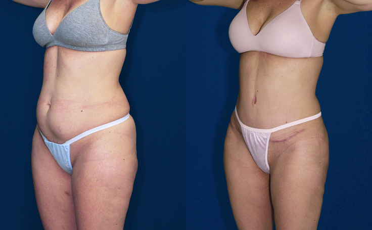 Tummy Tuck with Liposuction thighs and knees (angle view)