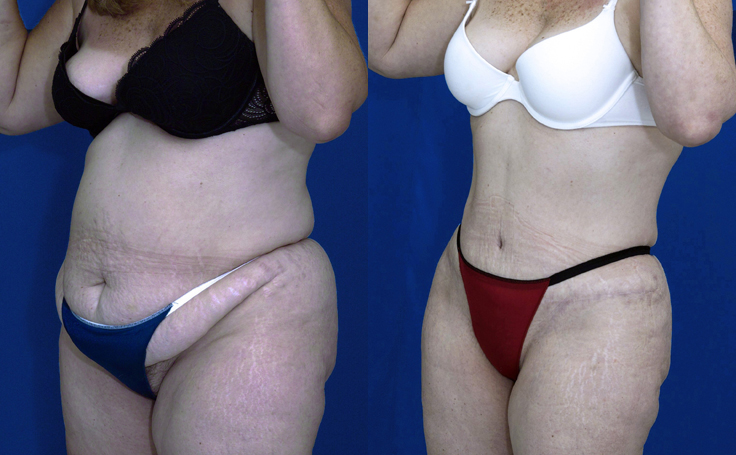 Tummy Tuck with Liposuction of flanks and thighs (angle view)