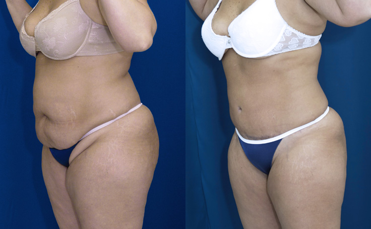 Tummy Tuck with Liposuction love handles and posterior triangle (angle view)
