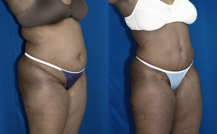 Tummy Tuck with Liposuction to flanks (angle view)