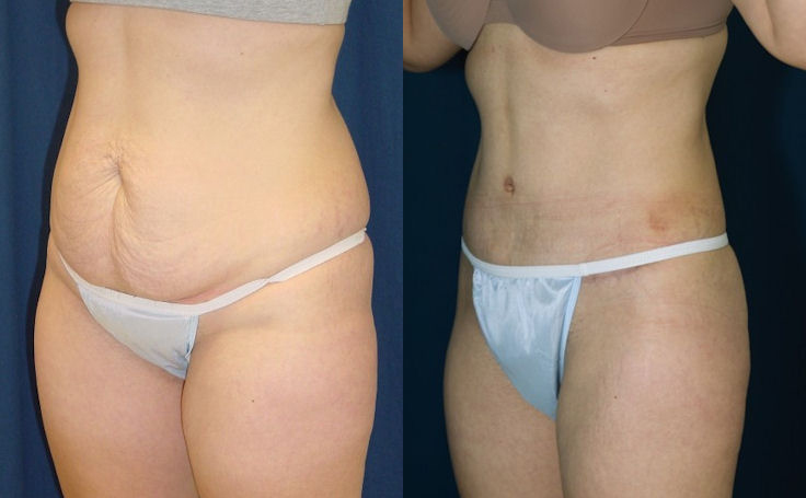 Tummy Tuck Removing Excess Skin and Fat (angle view)