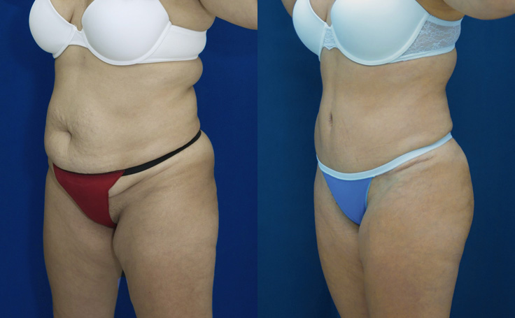 Tummy Tuck with liposuction to flanks and scapular areas (angle view)