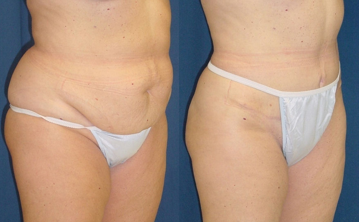 Tummy Tuck Removes Sagging Skin (angle view)