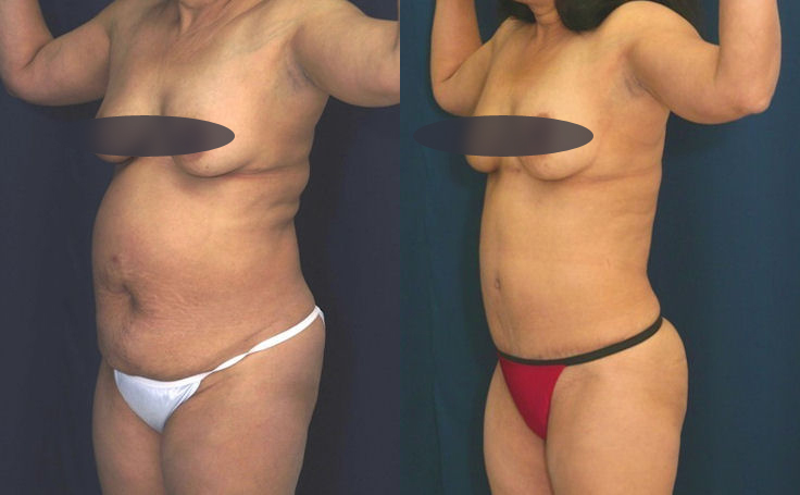 Tummy Tuck to reduce protruding stomach