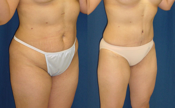 Tummy Tuck Removes Excess Skin and Fat (angle view)