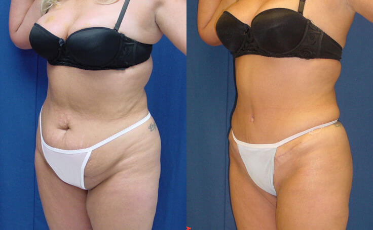 Tummy Tuck with Lipo to Flanks and Thighs (angle view)