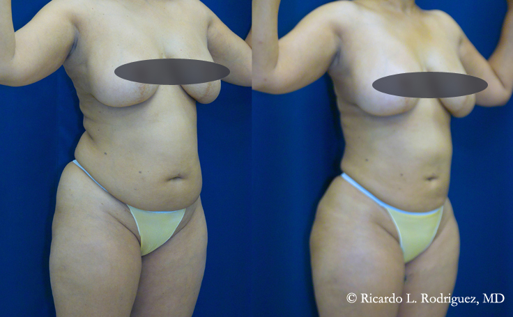 abdominoplasty with liposuction to remove excess fat