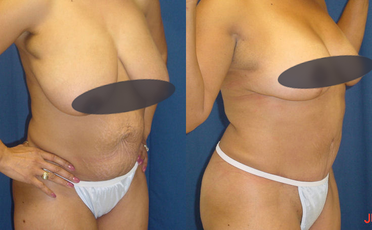 abdominoplasty and breast reduction