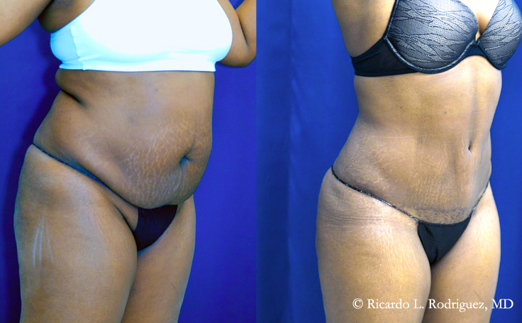 Tummy Tuck with Liposuction (total of 4350 cc fat extracted)
