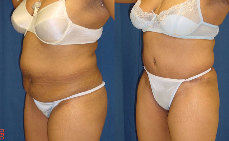 Full Tummy Tuck with Liposuction (angle view)