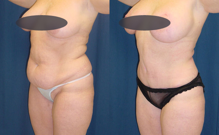tummy tuck for a flat stomach