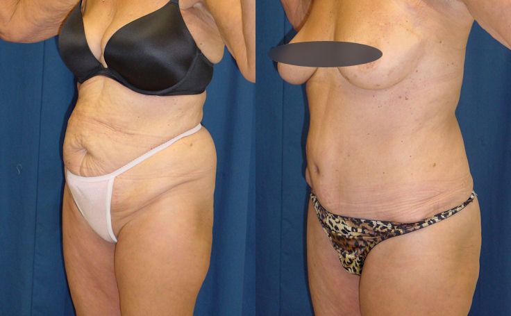 tummy tuck patient in her 60's