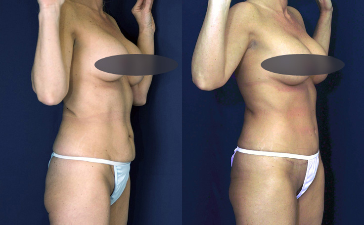 tummy tuck to remove small amount of loose skin