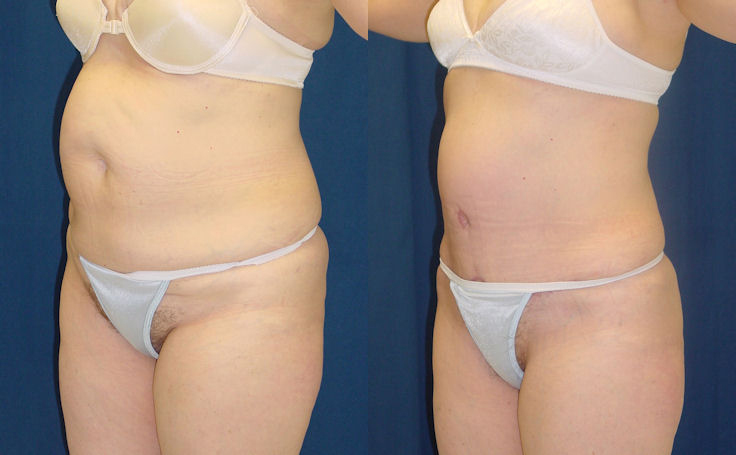 Tummy Tuck to Remove Stretch Marks (angle view)