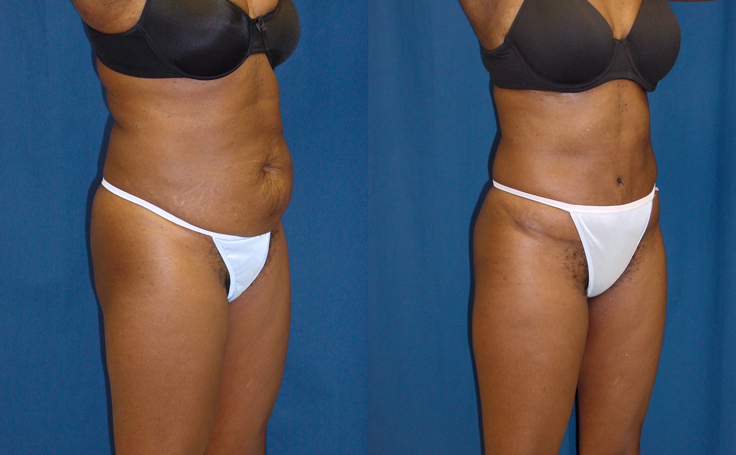 Tummy Tuck with Liposuction to right and left flanks (angle view)