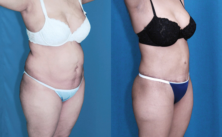 Tummy Tuck with Liposuction and Fat Injections into Buttocks (angle view)