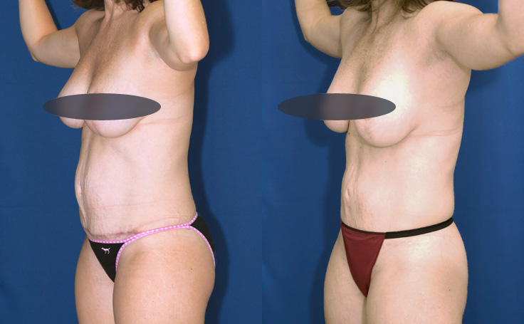 tummy tuck with liposuction to flanks and posterior triangle