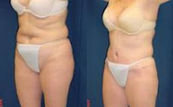 Tummy Tuck for Toned, Flat Stomach (angle view)