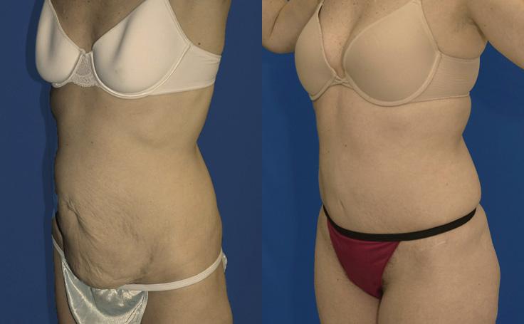Mini- Tummy Tuck with Liposuction flanks (angle view)