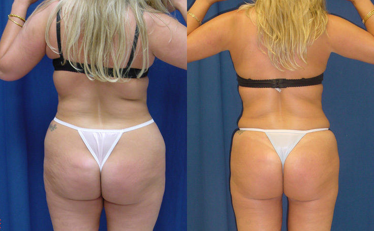 Tummy Tuck with Lipo to Flanks and Thighs (back view)
