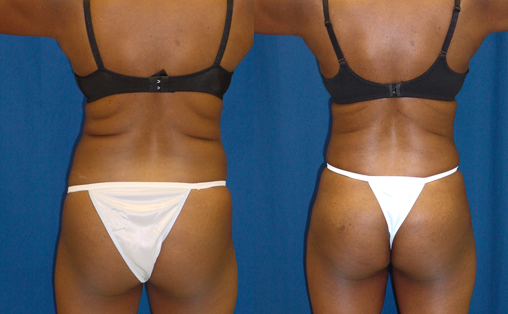 Tummy Tuck with Liposuction flanks and posterior triangle (back view)